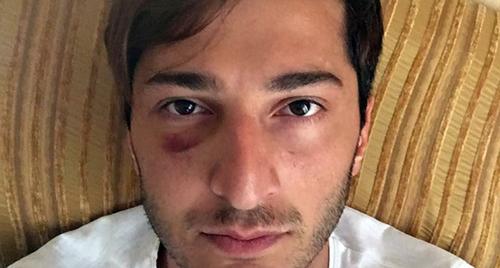 Гражданский сектор потребовал расследовать избиение гей-активистов в Батуми